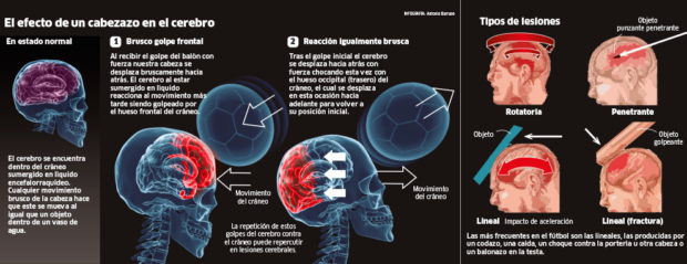 Les commotions cérébrales inquiètent le monde du foot